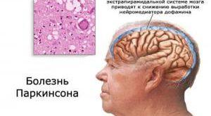 Неврологи обнаружили новое средство против болезни Паркинсона